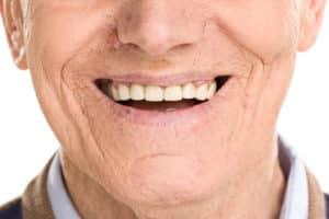 Dental Implants for Smile Completion