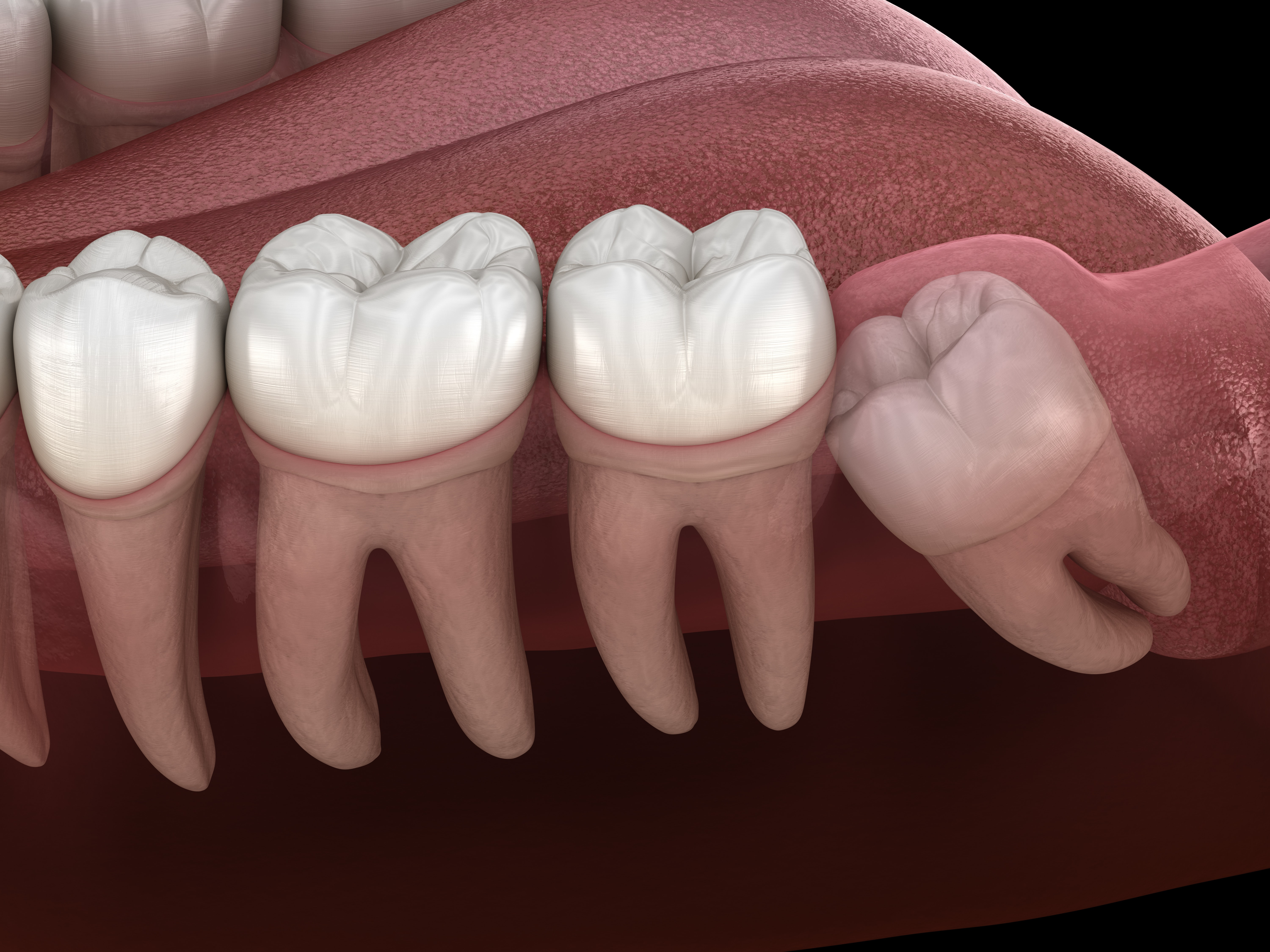 Woodland Hills Dentist Explains When Removing A Tooth Is The Best Option Woodland Hills Ca