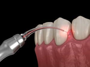 BIOLASE dental laser improves smile health