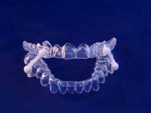 treating sleep apnea with an oral appliance