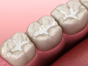 woodland hills dental filling
