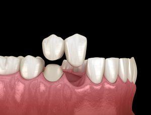 woodland hills dental crowns