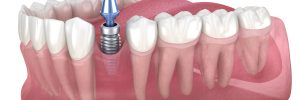 woodland hills dental implants