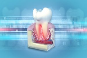woodland hills root canal