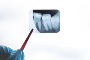 woodland hills wisdom tooth extraction