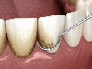 woodland hills periodontal health