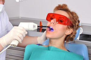 woodland hills dental fillings